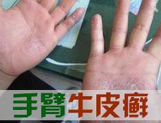 手部皮癣如何诊断