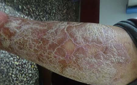 外阴银屑病的原因都是什么
