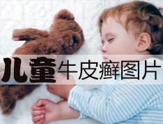 孩子牛皮癣要怎么做好护理呢
