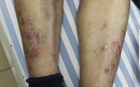 如何诊断寻常型银屑病